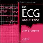 ECG made